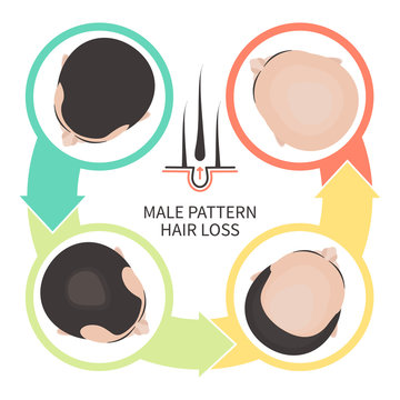 Male pattern hair loss set. Stages of baldness in men. Androgenetic alopecia infographic medical vector template for clinics and diagnostics centres.