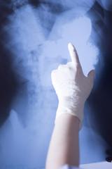 Medical xray spine hip scan