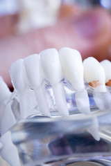 Dentist dental teeth model