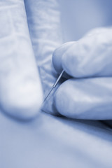 Dry needling EPI needle