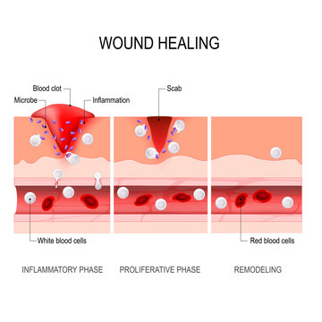 wound healing process. Tissue injury and inflammation.