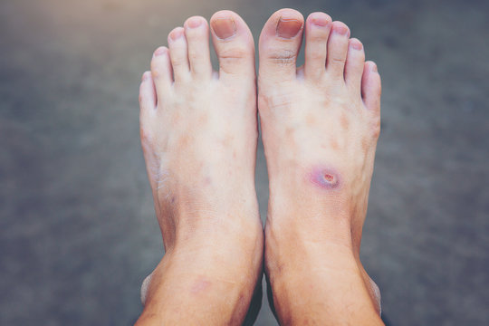 wound of beginning diabetic foot compare with normal foot.