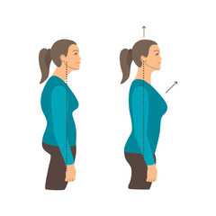 Vector colorful illustration. Neck exercises by girl for relax. Work with back. Uncorrect and correct straight posture. Creative concept. Blue and grey colors. White background