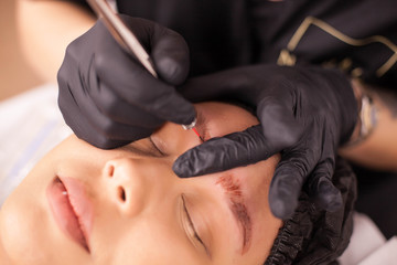 Top view of caucasian woman removing an eyebrow tattoo in a beauty salon.