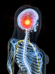 3d rendered medically accurate illustration of brain cancer