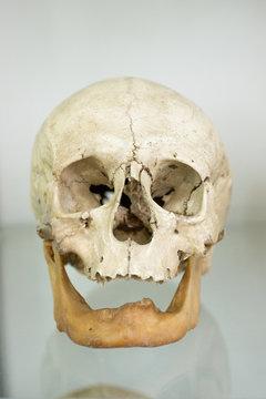 Human skull closeup