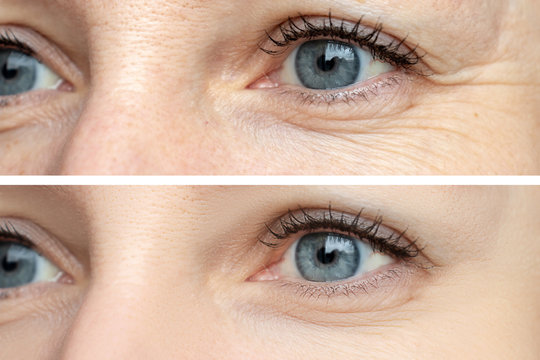 Woman face, eye wrinkles before and after treatment - the result of rejuvenating cosmetological procedures of biorevitalization, botox and pigment spots removal