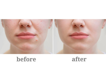 Acne on the girl's face. Treatment of rosacea. Before and after.