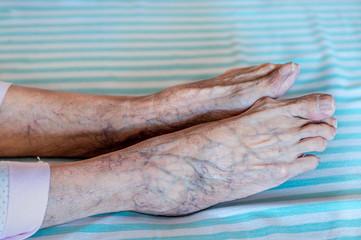 Side view of elder human feet with purple veins