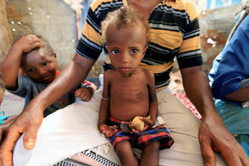 Hanaa Ahmad Ali Bahr, a malnourished girl sits on her father's lap in a shanty town in Hodeidah