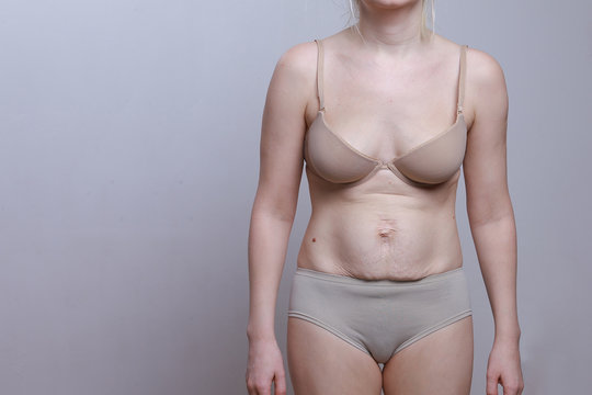 A woman with a figure after giving birth. Stretch marks on the belly. Front view