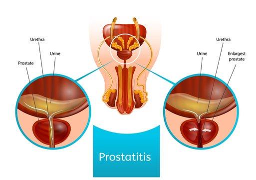 Scarlet a prostatitisre)