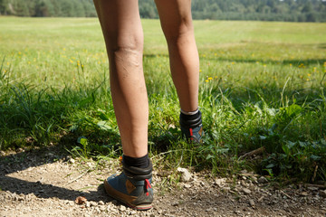 Woman with painful varicose veins on legs resting on a walk through nature.