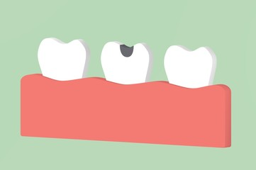 decay tooth or dental caries - teeth cartoon 3d render
