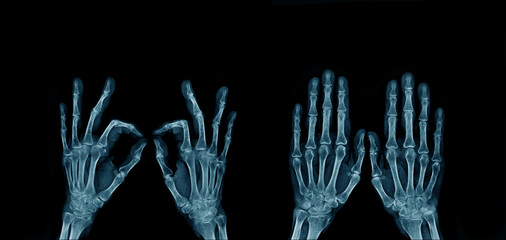 x-ray image hand and finger