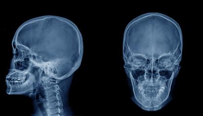 skull x-ray image AP