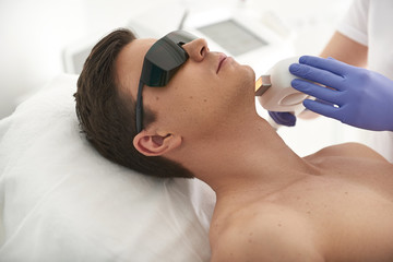 Laser hair removal procedure of young man