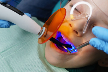 Dentist places filling on baby teeth of little girl. Treatment in dental clinic. Dentist holds photopolymerizer. Children's dentistry