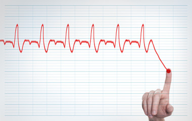 Heart pulse, one line with hand, cardiogram. Concept