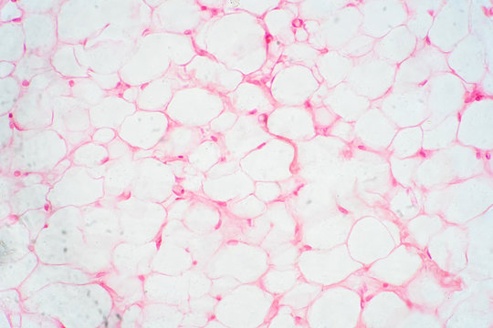 Human fat body tissue under microscope view.
