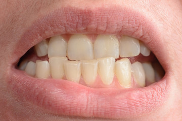 A young woman shows her crooked teeth that needs medical help in close-ups
