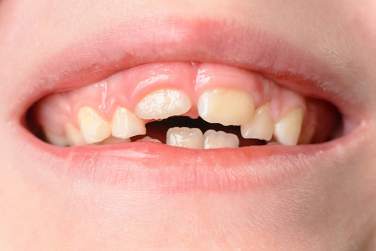 The child opens wide mouths, showing his crooked teeth after falling of milk teeth