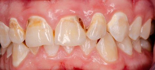 frontal teeth with tooth decay