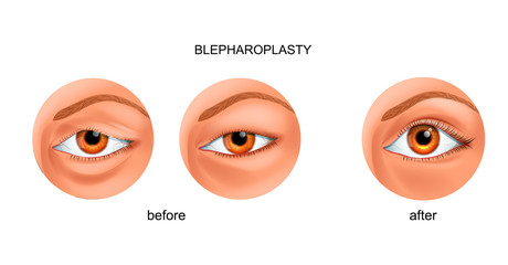blepharoplasty of the overhanging eyelid and Asian eyelid