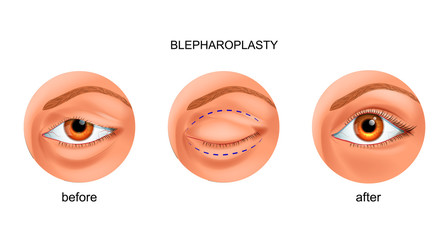 blepharoplasty of the overhanging eyelid