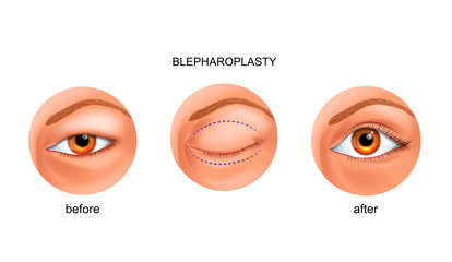 blepharoplasty of the Asian eyelid