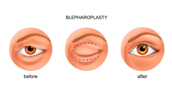 blepharoplasty of the overhanging eyelid