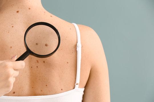 Dermatologist examining moles of patient on grey background