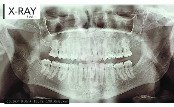 Xray teeth mouth dental tomography. Vector X-ray radiology oral panorama. Medical skeleton x ray background.