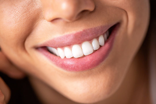 Close up of a beautiful smile with shining white teeth