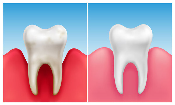Vector illustration of gum disease -  periodontitis in compare with healthy white tooth