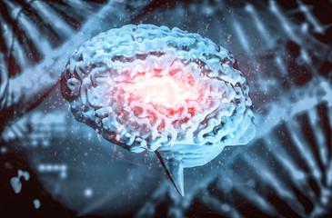 Hirninfarkt - Hirnschlag - Kopfschmerz