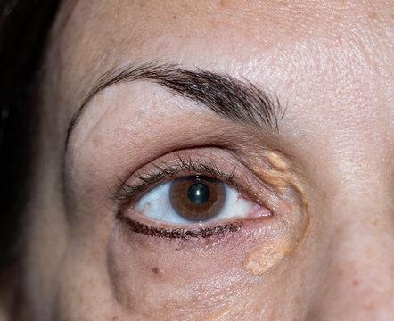 Closeup of woman with xanthelasma