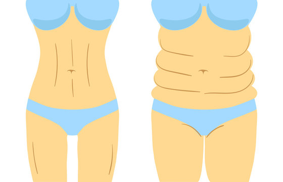 Liposuction before and after effect, fitness or diet. Vector illustration of woman figure