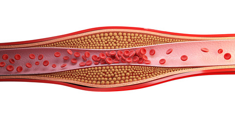 3d rendering cell of red blood clot.