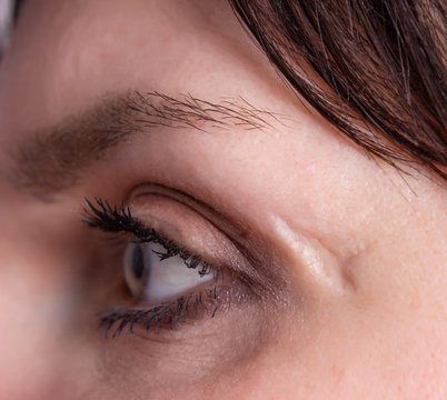 deep scar and scar on the face of the girl near the eye, close-up, skin problem, cosmetology