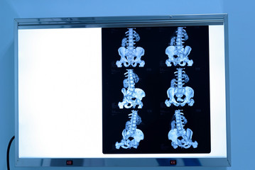 Sacrum and pelvic x-ray film on light box before treatment.Image bone at radiology department in hospital