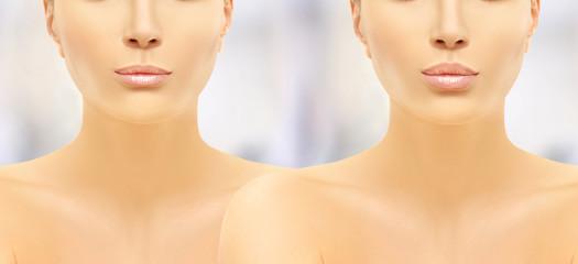 Beauty injections.Concept of rejuvenation.Lip augmentation