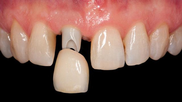 Krone auf Implantat