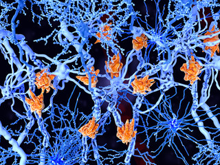 Multiple sclerosis (MS): microglia cells damage the myelin sheath of neuron axons.