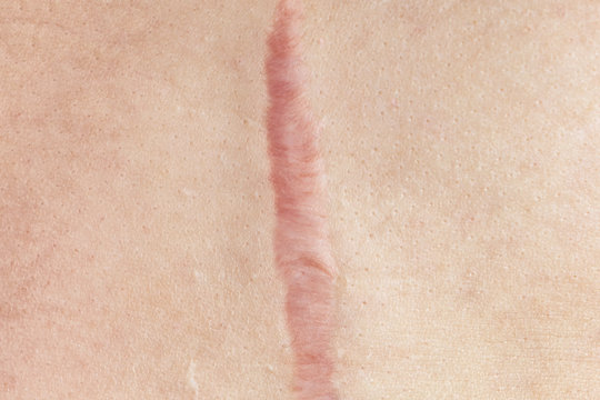 Close up of cyanotic keloid scar caused by surgery and suturing, skin imperfections or defects. Hypertrophic Scar on skin, dermatology and cosmetology concept