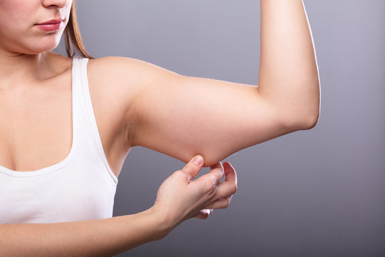 Woman Holding Arm With Excess Fat