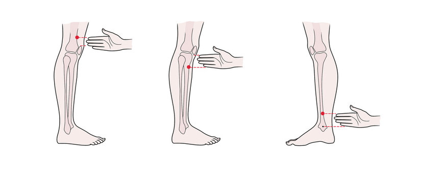 Active acupuncture points on the legs: above the knee, below the knee, above the ankle.