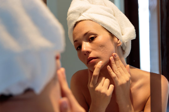 young woman looking her acne scars on the mirror