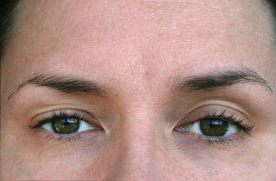 Ptosis. eyelid syndrome