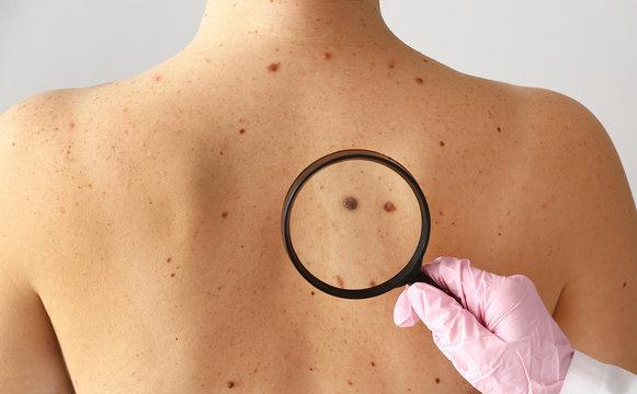 Dermatologist examining moles of patient in clinic